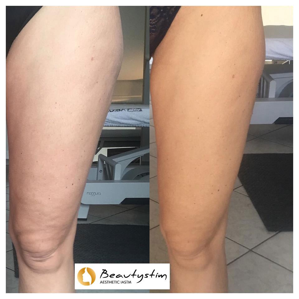 beautystim-formazione-italia-risultati-3